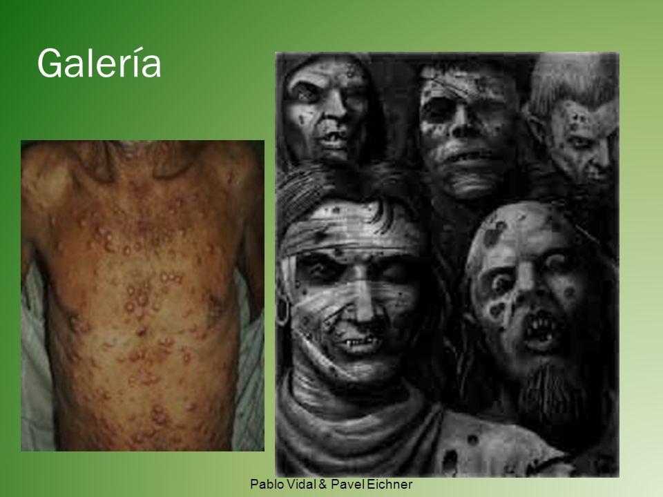Epidemología Pablo Vidal & Pavel Eichner Número de afectados por la Lepra por cada 100.000 habitantes en 2003