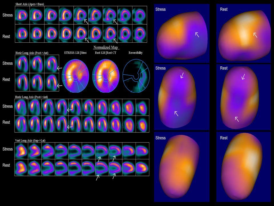 Medicina nuclear Se basa en suministrar al paciente sustancias radiactivas (contrastes) que emiten rayos gamma y que pueden ser captadas por un detect