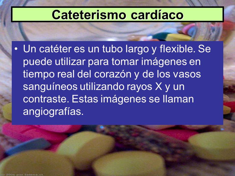 Cateterismo cardíaco Un catéter es un tubo largo y flexible. Se puede utilizar para tomar imágenes en tiempo real del corazón y de los vasos sanguíneo