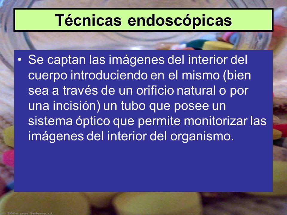 Técnicas endoscópicas Se captan las imágenes del interior del cuerpo introduciendo en el mismo (bien sea a través de un orificio natural o por una inc