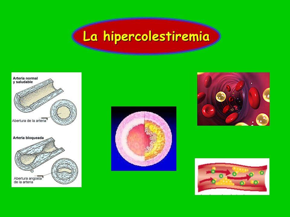 La hipercolestiremia