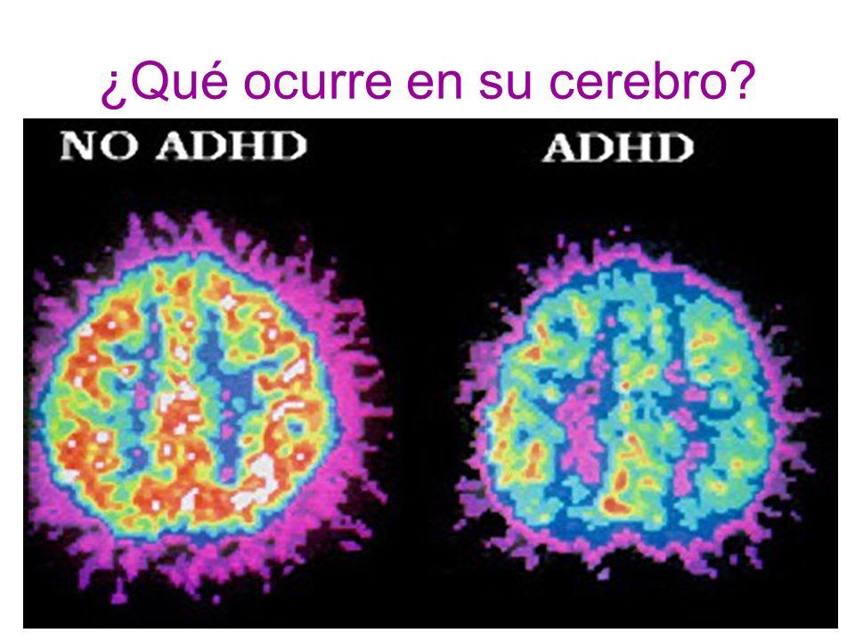¿Qué ocurre en su cerebro?