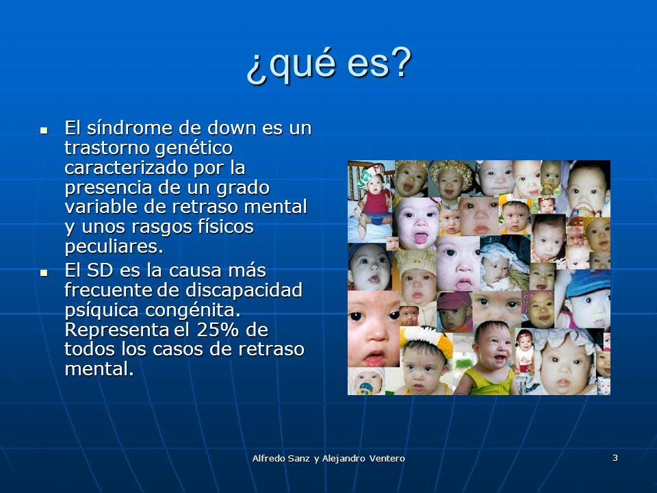 Alfredo Sanz y Alejandro Ventero 3 ¿qué es? El síndrome de down es un trastorno genético caracterizado por la presencia de un grado variable de retras