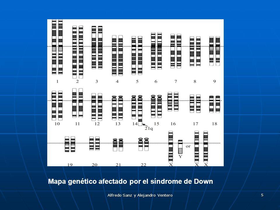 Alfredo Sanz y Alejandro Ventero 5 Mapa genético afectado por el síndrome de Down