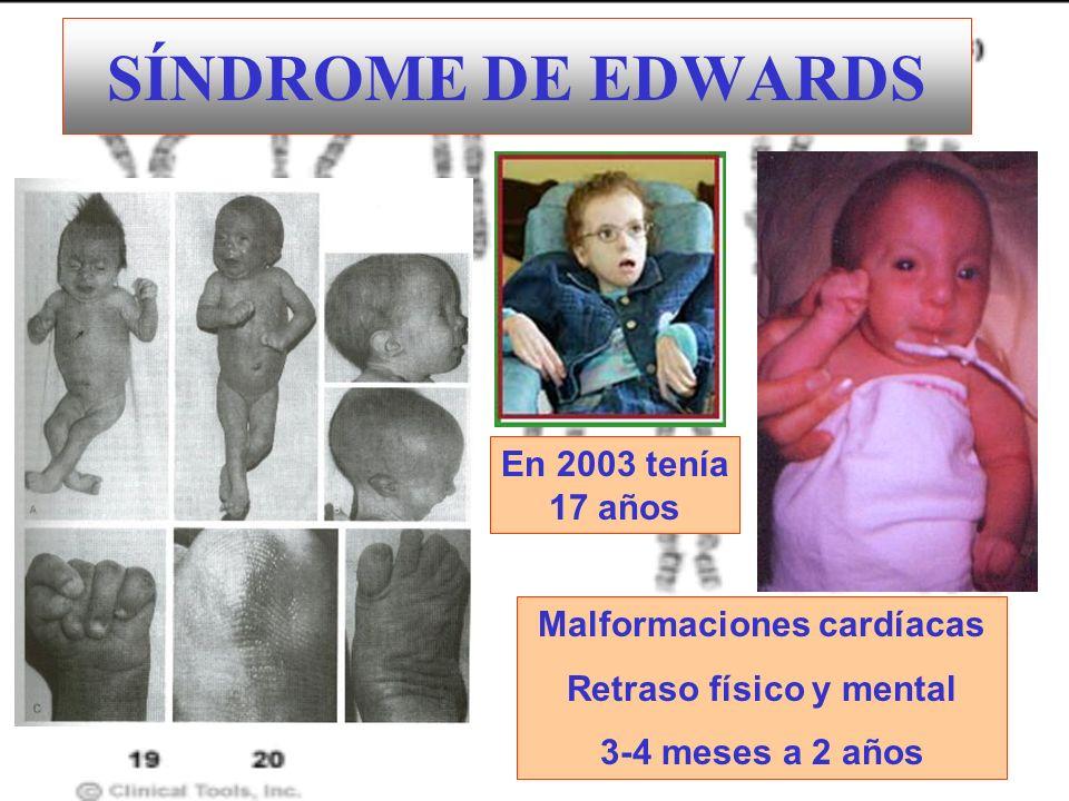 SÍNDROME DE EDWARDS Malformaciones cardíacas Retraso físico y mental 3-4 meses a 2 años En 2003 tenía 17 años