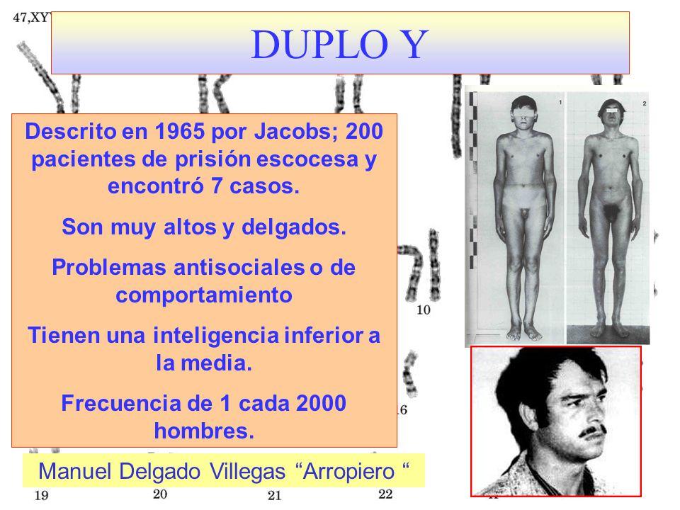DUPLO Y Descrito en 1965 por Jacobs; 200 pacientes de prisión escocesa y encontró 7 casos. Son muy altos y delgados. Problemas antisociales o de compo