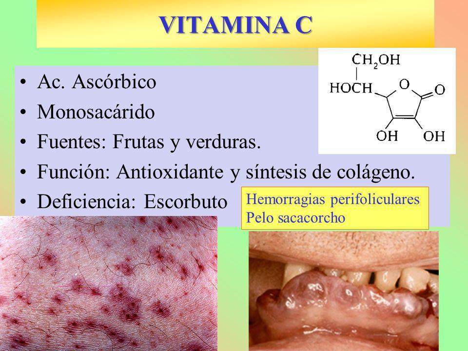 VITAMINA C Ac. Ascórbico Monosacárido Fuentes: Frutas y verduras. Función: Antioxidante y síntesis de colágeno. Deficiencia: Escorbuto Hemorragias per