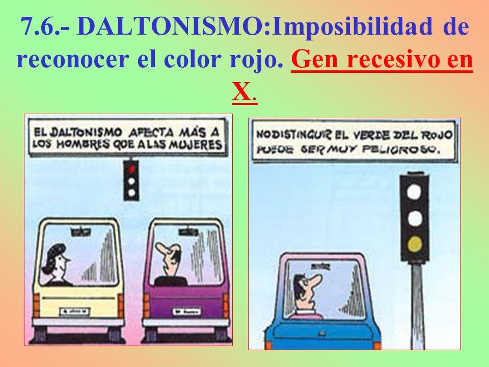 7.6.- DALTONISMO:Imposibilidad de reconocer el color rojo. Gen recesivo en X.