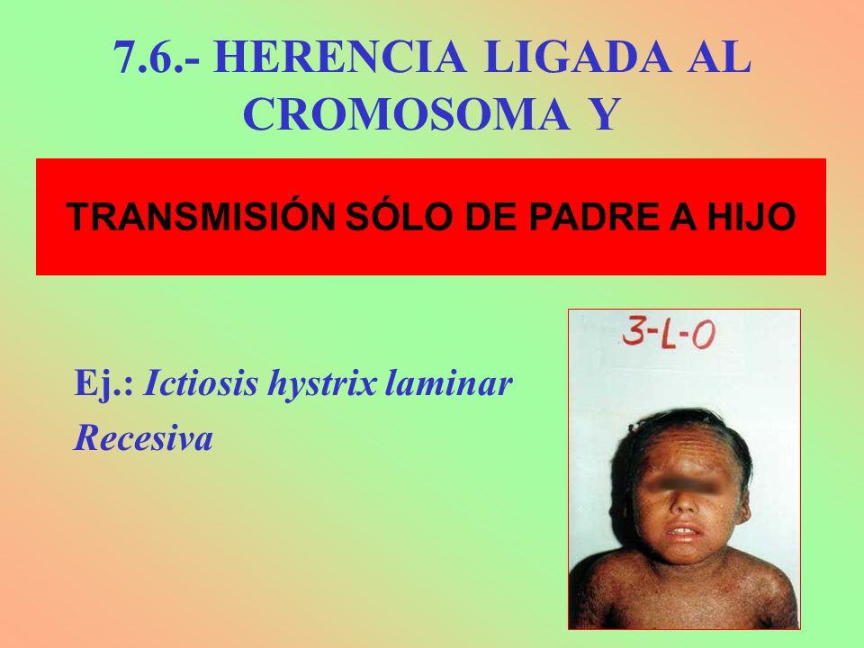 7.6.- HERENCIA LIGADA AL CROMOSOMA Y Ej.: Ictiosis hystrix laminar Recesiva TRANSMISIÓN SÓLO DE PADRE A HIJO