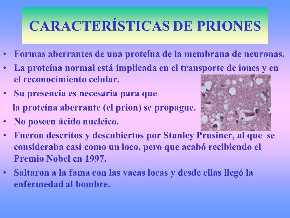 CARACTERÍSTICAS DE PRIONES Formas aberrantes de una proteína de la membrana de neuronas. La proteína normal está implicada en el transporte de iones y