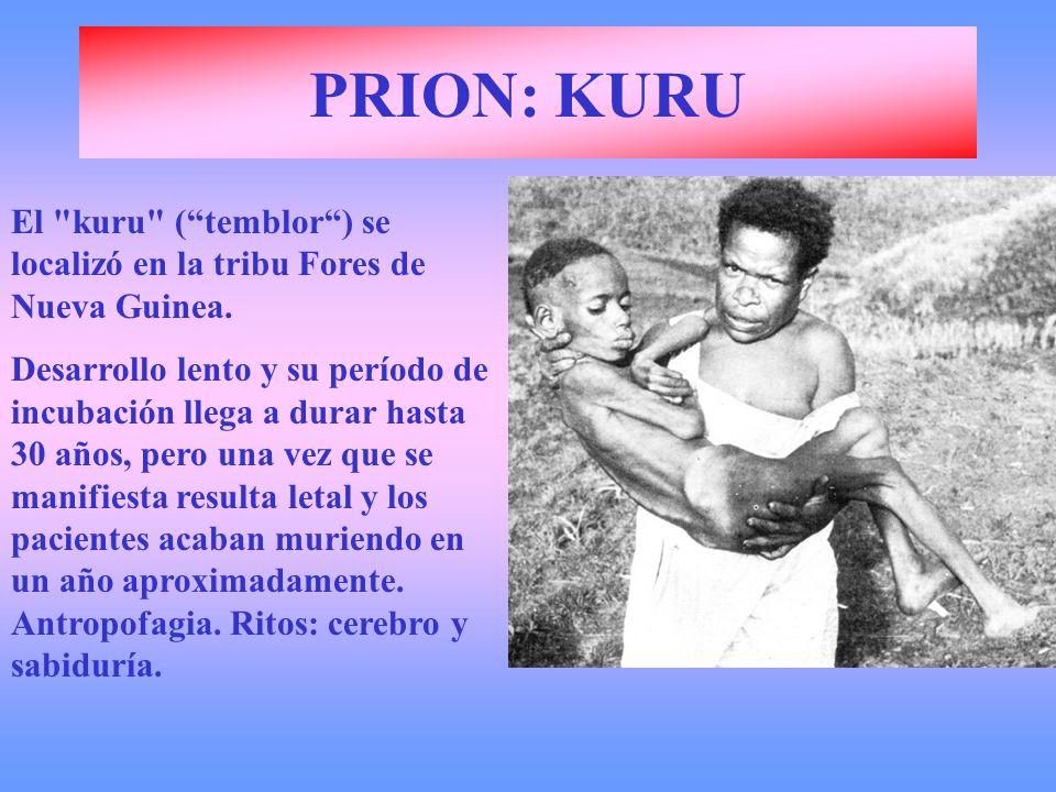 PRION: KURU El