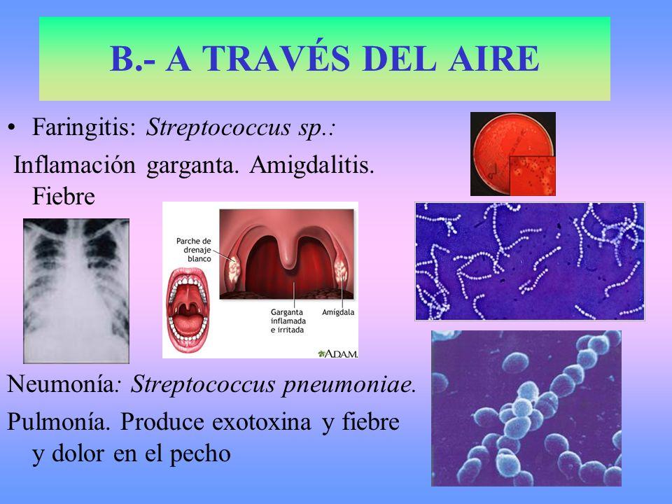 Faringitis: Streptococcus sp.: Inflamación garganta. Amigdalitis. Fiebre Neumonía: Streptococcus pneumoniae. Pulmonía. Produce exotoxina y fiebre y do