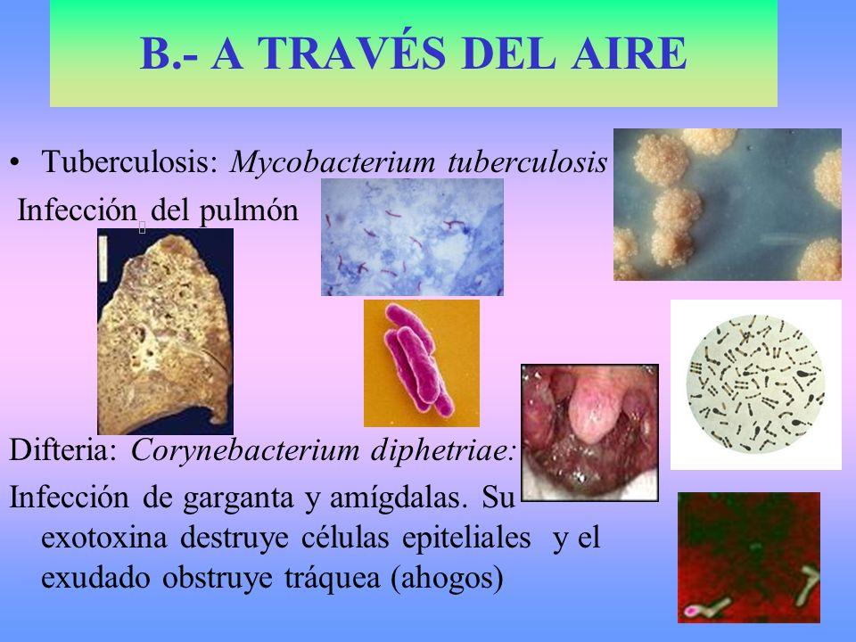 Tuberculosis: Mycobacterium tuberculosis Infección del pulmón Difteria: Corynebacterium diphetriae: Infección de garganta y amígdalas. Su exotoxina de