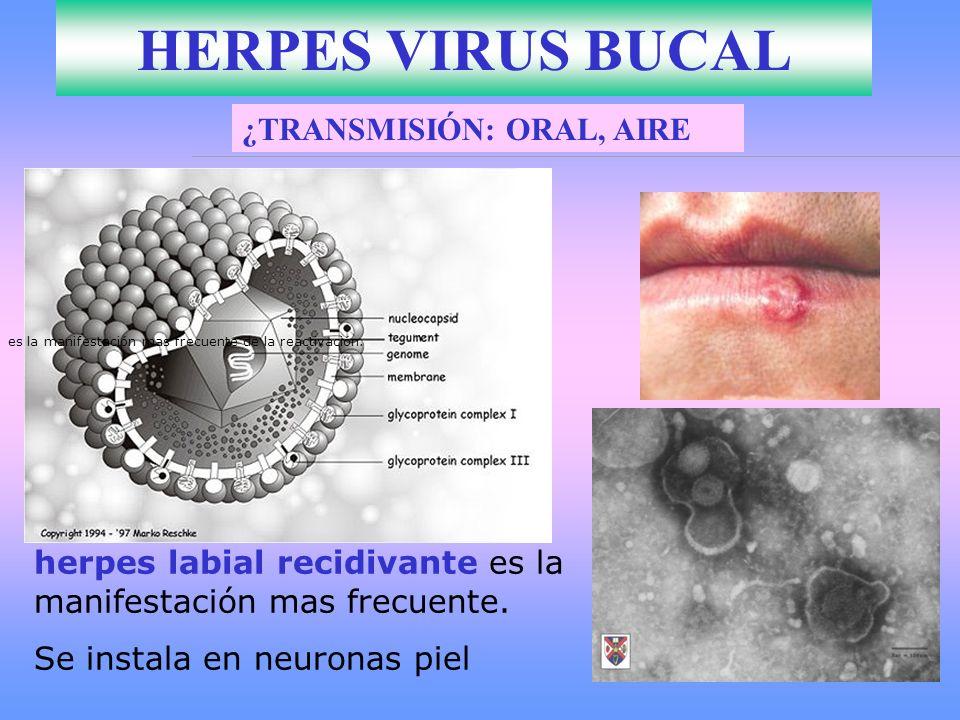 HERPES VIRUS BUCAL herpes labial recidivante es la manifestación mas frecuente de la reactivación. herpes labial recidivante es la manifestación mas f