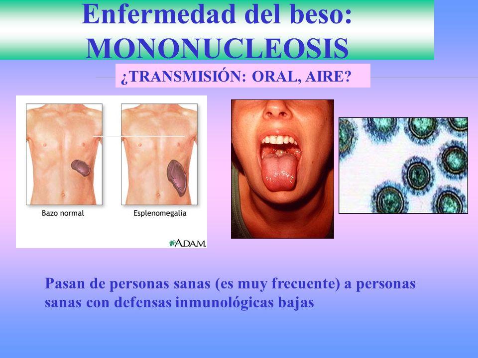 Enfermedad del beso: MONONUCLEOSIS ¿TRANSMISIÓN: ORAL, AIRE? Pasan de personas sanas (es muy frecuente) a personas sanas con defensas inmunológicas ba