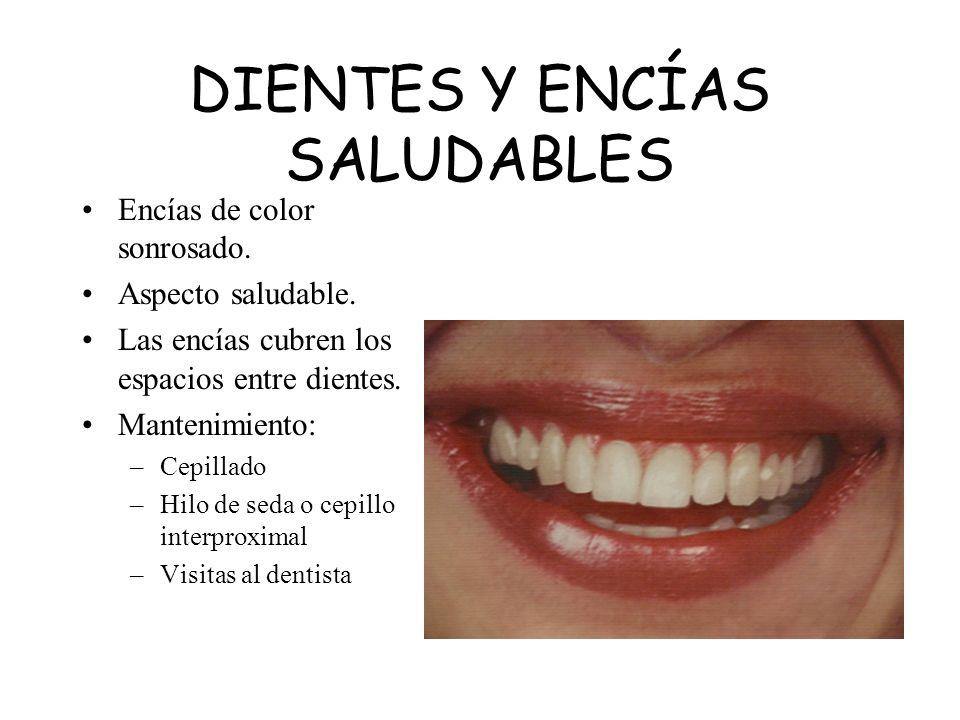 DIENTES Y ENCÍAS SALUDABLES Encías de color sonrosado. Aspecto saludable. Las encías cubren los espacios entre dientes. Mantenimiento: –Cepillado –Hil