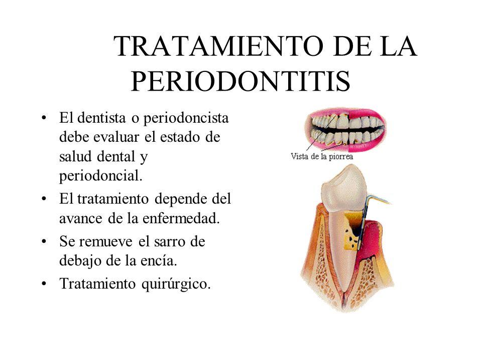 TRATAMIENTO DE LA PERIODONTITIS El dentista o periodoncista debe evaluar el estado de salud dental y periodoncial. El tratamiento depende del avance d