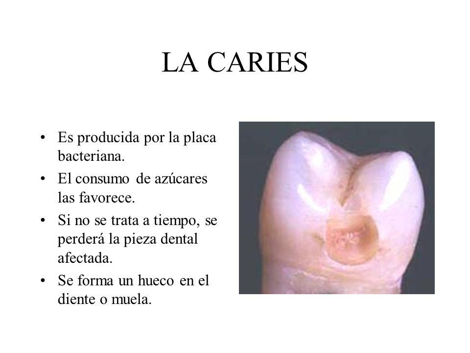LA CARIES Es producida por la placa bacteriana. El consumo de azúcares las favorece. Si no se trata a tiempo, se perderá la pieza dental afectada. Se
