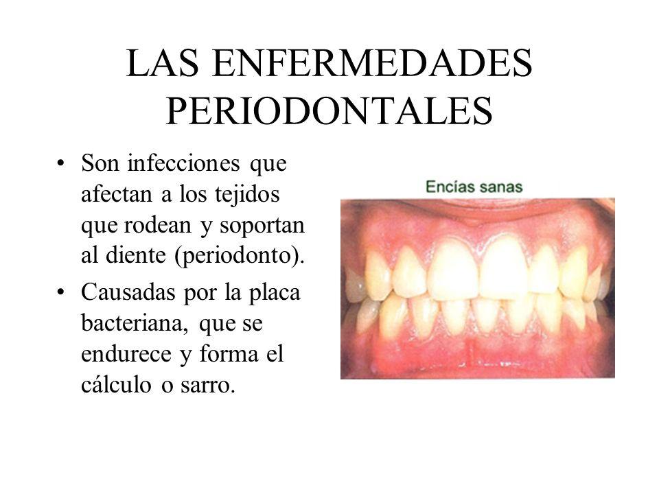 LAS ENFERMEDADES PERIODONTALES Son infecciones que afectan a los tejidos que rodean y soportan al diente (periodonto). Causadas por la placa bacterian