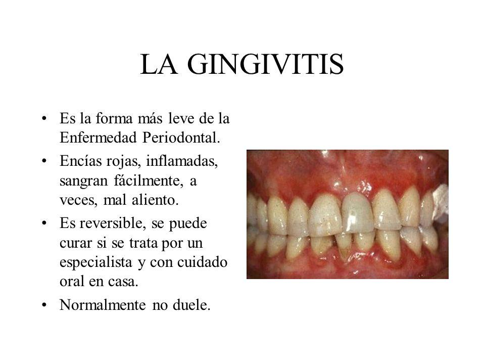 LA GINGIVITIS Es la forma más leve de la Enfermedad Periodontal. Encías rojas, inflamadas, sangran fácilmente, a veces, mal aliento. Es reversible, se