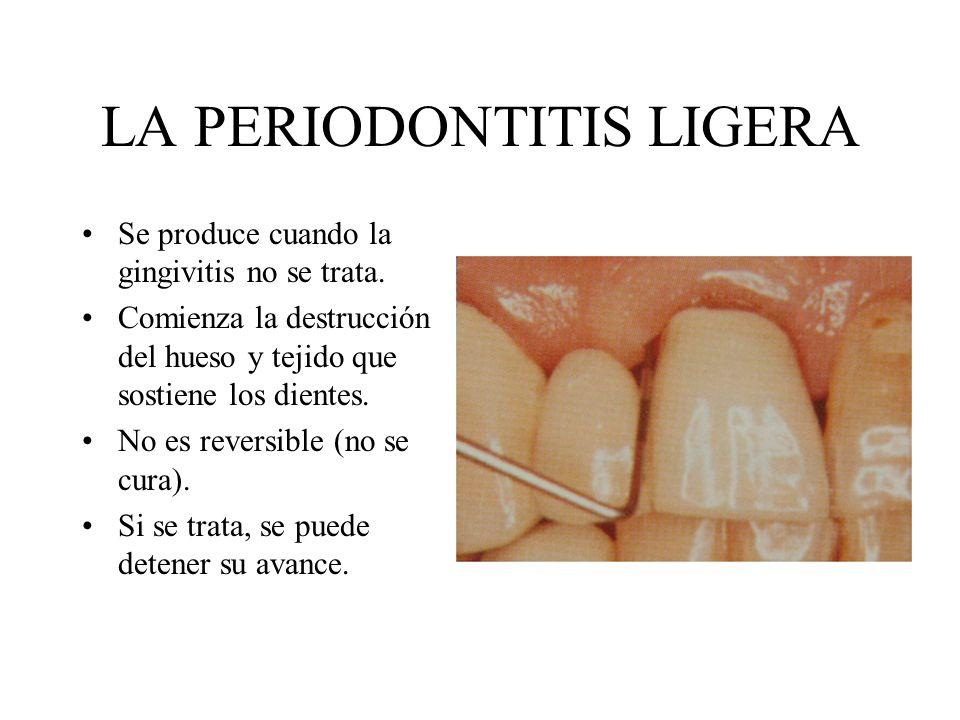 LA PERIODONTITIS LIGERA Se produce cuando la gingivitis no se trata. Comienza la destrucción del hueso y tejido que sostiene los dientes. No es revers