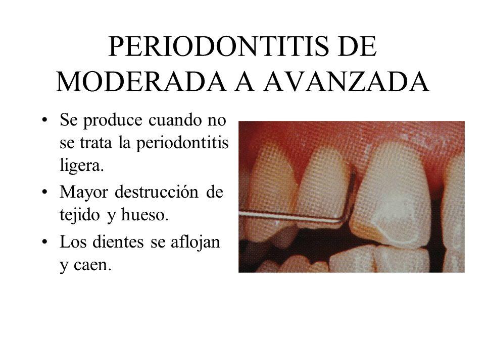 PERIODONTITIS DE MODERADA A AVANZADA Se produce cuando no se trata la periodontitis ligera. Mayor destrucción de tejido y hueso. Los dientes se afloja