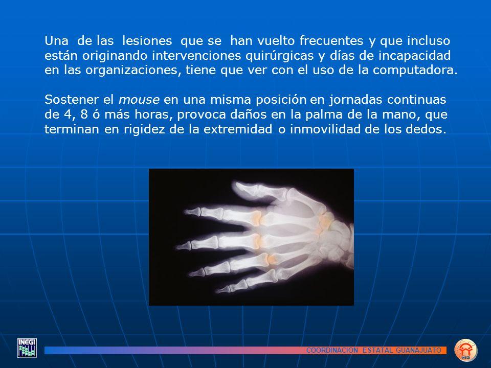COORDINACION ESTATAL GUANAJUATO Una de las lesiones que se han vuelto frecuentes y que incluso están originando intervenciones quirúrgicas y días de incapacidad en las organizaciones, tiene que ver con el uso de la computadora.