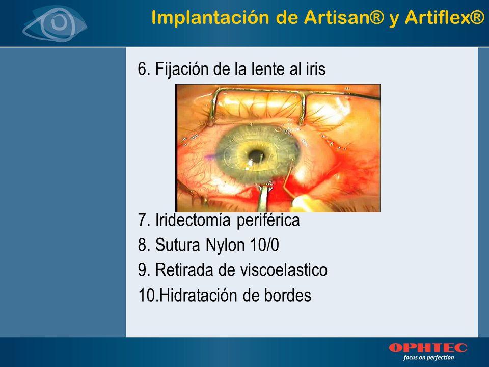 Implantación de Artisan® y Artiflex® 6. Fijación de la lente al iris 7. Iridectomía periférica 8. Sutura Nylon 10/0 9. Retirada de viscoelastico 10.Hi