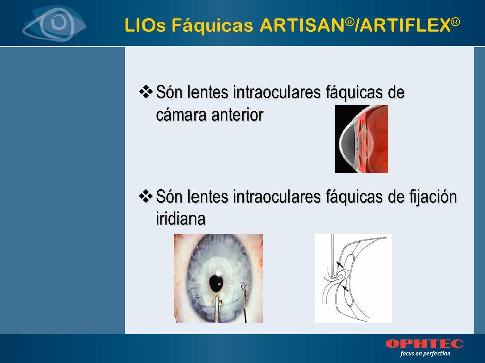 LIOs Fáquicas ARTISAN ® /ARTIFLEX ® Por qué lentes intraoculares fáquicas de cámara anterior Por qué lentes intraoculares fáquicas de cámara anterior Porque han demostrado su estabilidad a lo largo de la historia y el tiempo Porque han demostrado su estabilidad a lo largo de la historia y el tiempo Permiten mantener el sistema de enfoque del ojo Permiten mantener el sistema de enfoque del ojo
