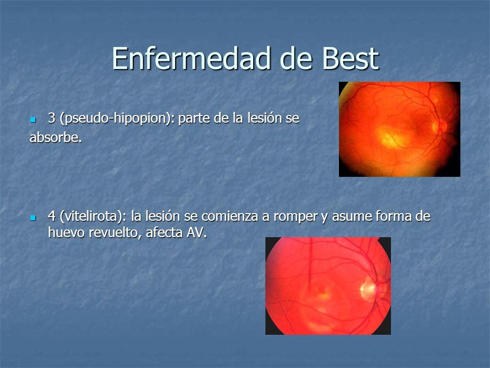 Enfermedad de Best 3 (pseudo-hipopion): parte de la lesión se 3 (pseudo-hipopion): parte de la lesión seabsorbe. 4 (vitelirota): la lesión se comienza