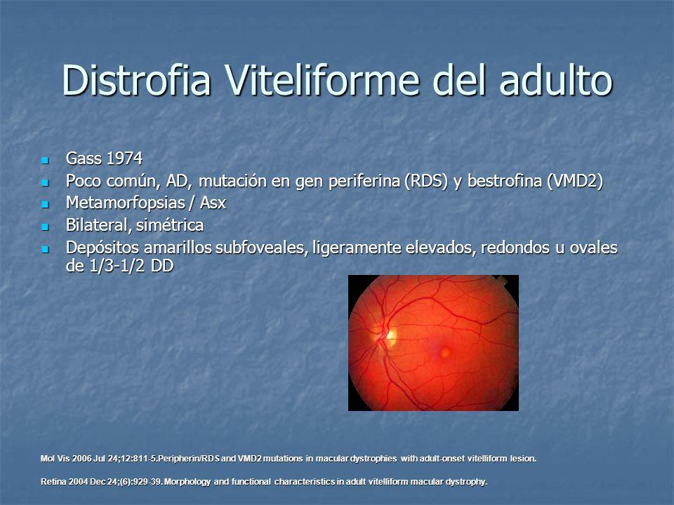 Distrofia Viteliforme del adulto Gass 1974 Gass 1974 Poco común, AD, mutación en gen periferina (RDS) y bestrofina (VMD2) Poco común, AD, mutación en