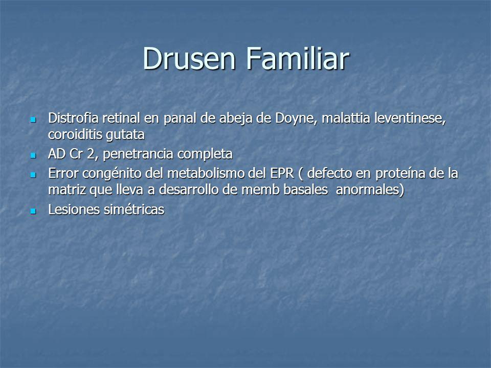 Drusen Familiar Distrofia retinal en panal de abeja de Doyne, malattia leventinese, coroiditis gutata Distrofia retinal en panal de abeja de Doyne, ma