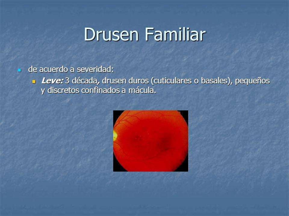 Drusen Familiar de acuerdo a severidad: de acuerdo a severidad: Leve: 3 década, drusen duros (cuticulares o basales), pequeños y discretos confinados
