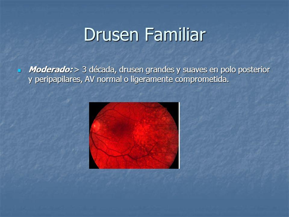 Drusen Familiar Moderado: > 3 década, drusen grandes y suaves en polo posterior y peripapilares, AV normal o ligeramente comprometida. Moderado: > 3 d