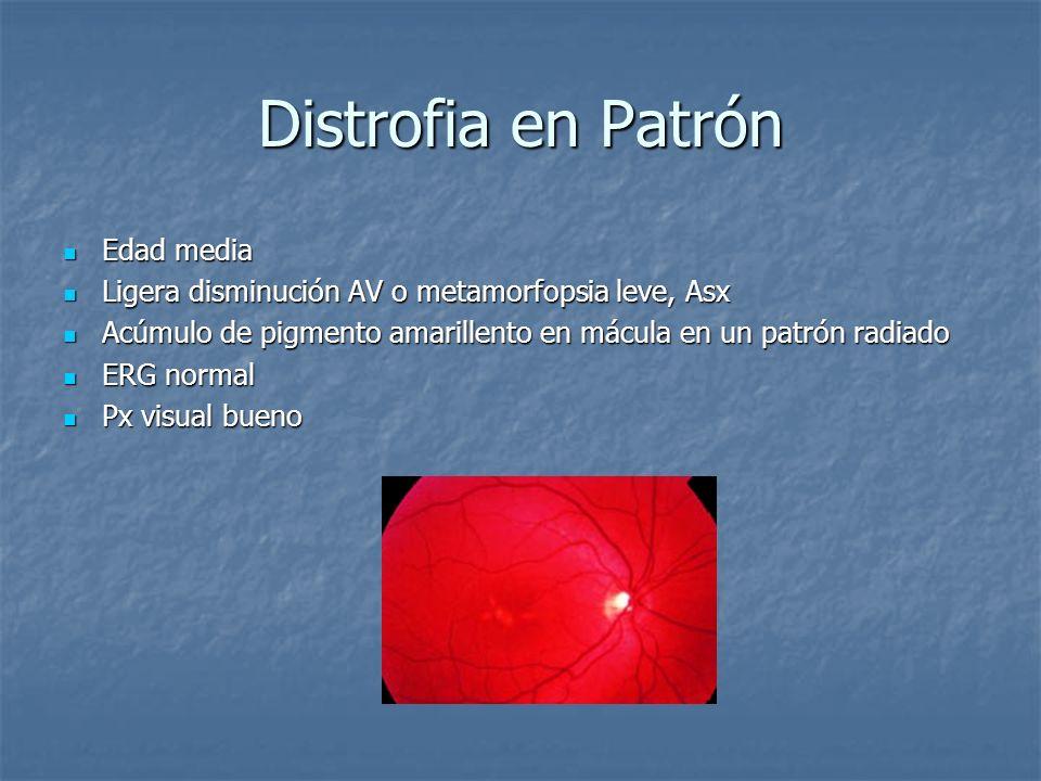Distrofia en Patrón Edad media Edad media Ligera disminución AV o metamorfopsia leve, Asx Ligera disminución AV o metamorfopsia leve, Asx Acúmulo de p