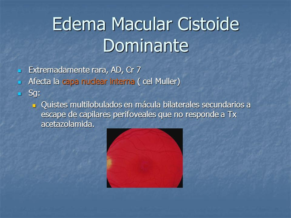 Edema Macular Cistoide Dominante Extremadamente rara, AD, Cr 7 Extremadamente rara, AD, Cr 7 Afecta la capa nuclear interna ( cel Muller) Afecta la ca