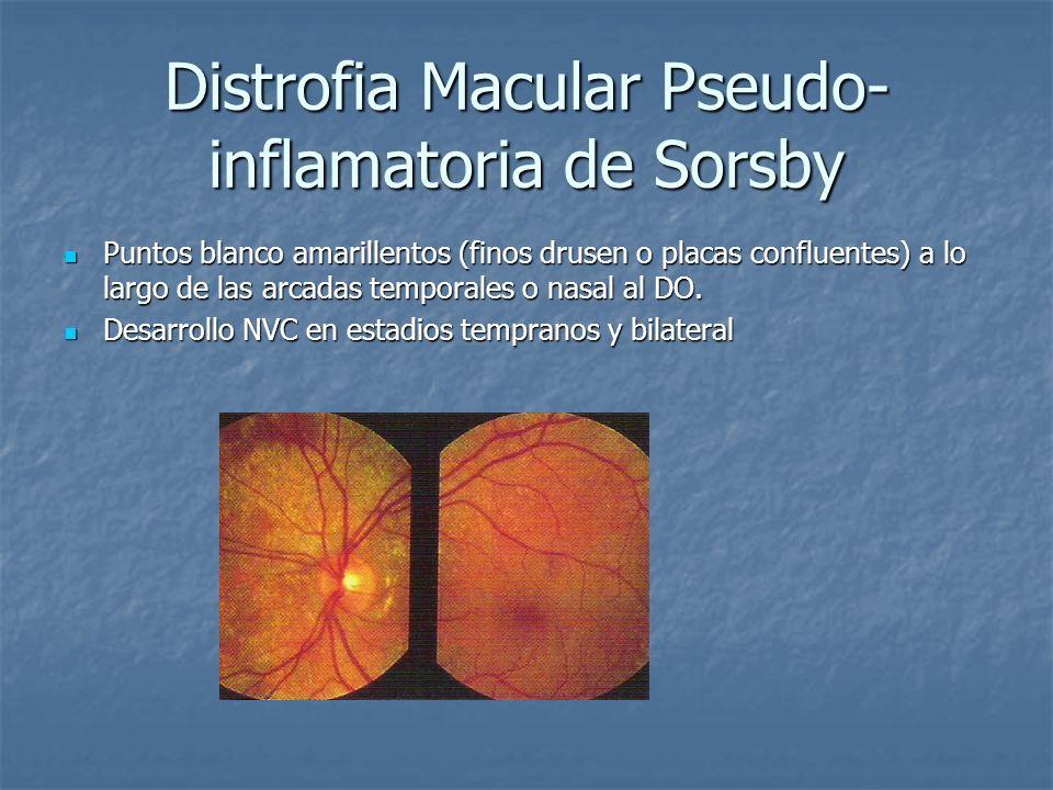 Distrofia Macular Pseudo- inflamatoria de Sorsby Puntos blanco amarillentos (finos drusen o placas confluentes) a lo largo de las arcadas temporales o