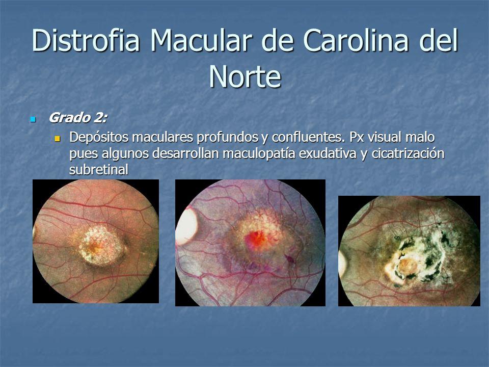 Distrofia Macular de Carolina del Norte Grado 2: Grado 2: Depósitos maculares profundos y confluentes. Px visual malo pues algunos desarrollan maculop