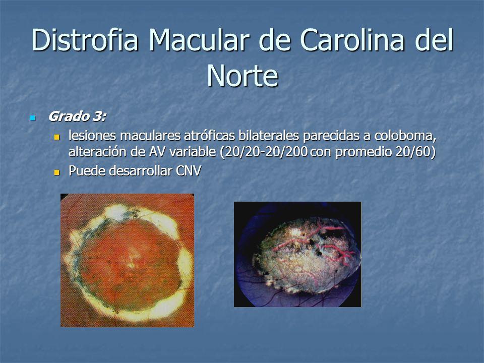 Distrofia Macular de Carolina del Norte Grado 3: Grado 3: lesiones maculares atróficas bilaterales parecidas a coloboma, alteración de AV variable (20