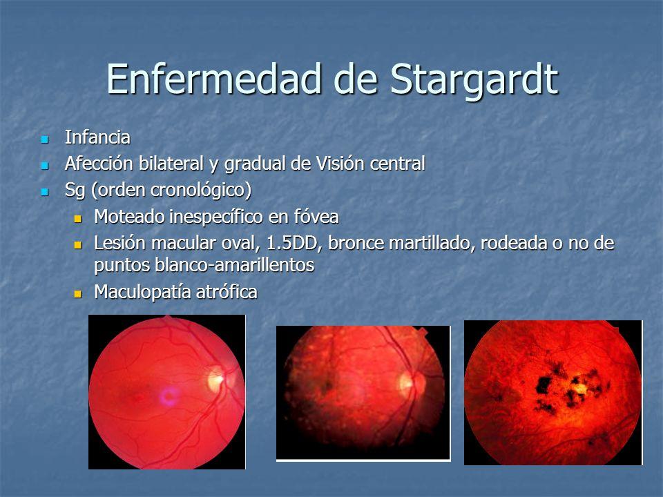 Enfermedad de Stargardt AGF: AGF: Maculopatía atrófica hiperfluorescencia macular y en los puntos que la rodean secundario a defectos en ventana del EPR Maculopatía atrófica hiperfluorescencia macular y en los puntos que la rodean secundario a defectos en ventana del EPR 75% casos coroides oscura secundario al bloqueo de fluorescencia coroidea por acúmulo de lipofucsina en EPR 75% casos coroides oscura secundario al bloqueo de fluorescencia coroidea por acúmulo de lipofucsina en EPR
