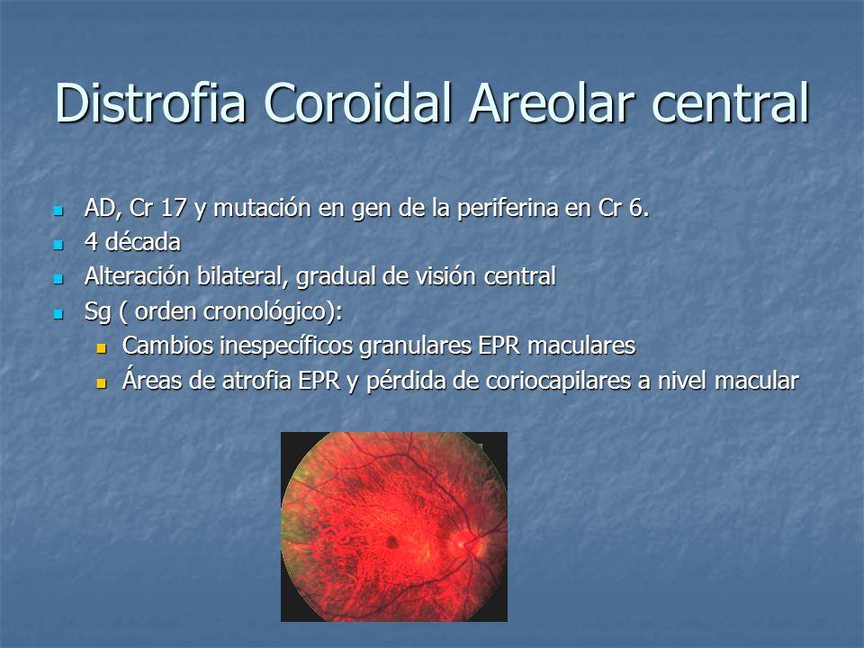Distrofia Coroidal Areolar central AD, Cr 17 y mutación en gen de la periferina en Cr 6. AD, Cr 17 y mutación en gen de la periferina en Cr 6. 4 décad