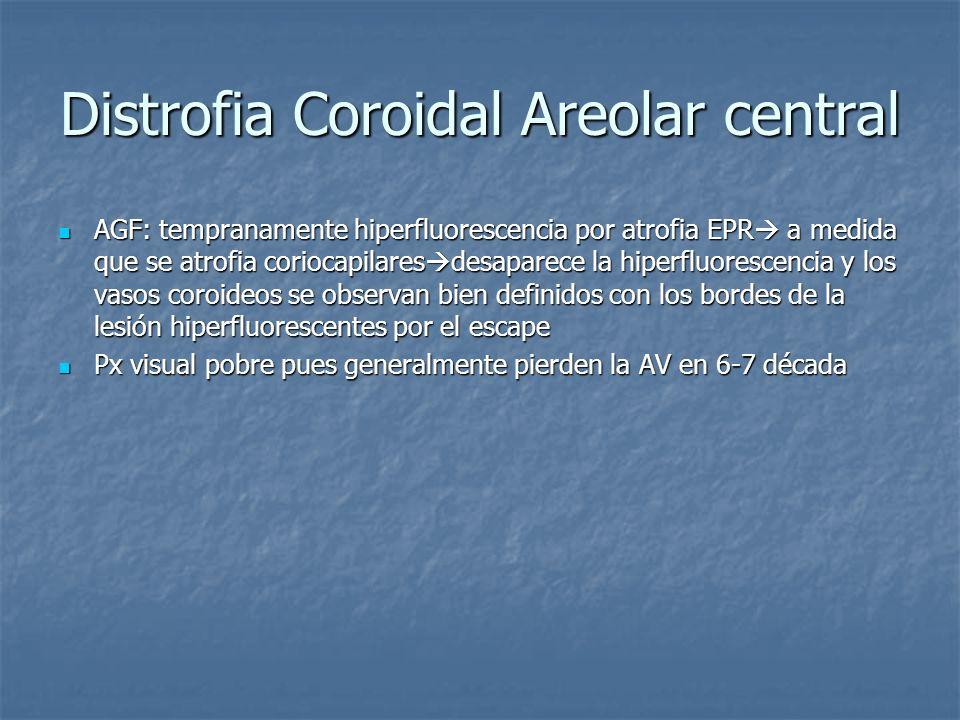 Distrofia Coroidal Areolar central AGF: tempranamente hiperfluorescencia por atrofia EPR a medida que se atrofia coriocapilares desaparece la hiperflu