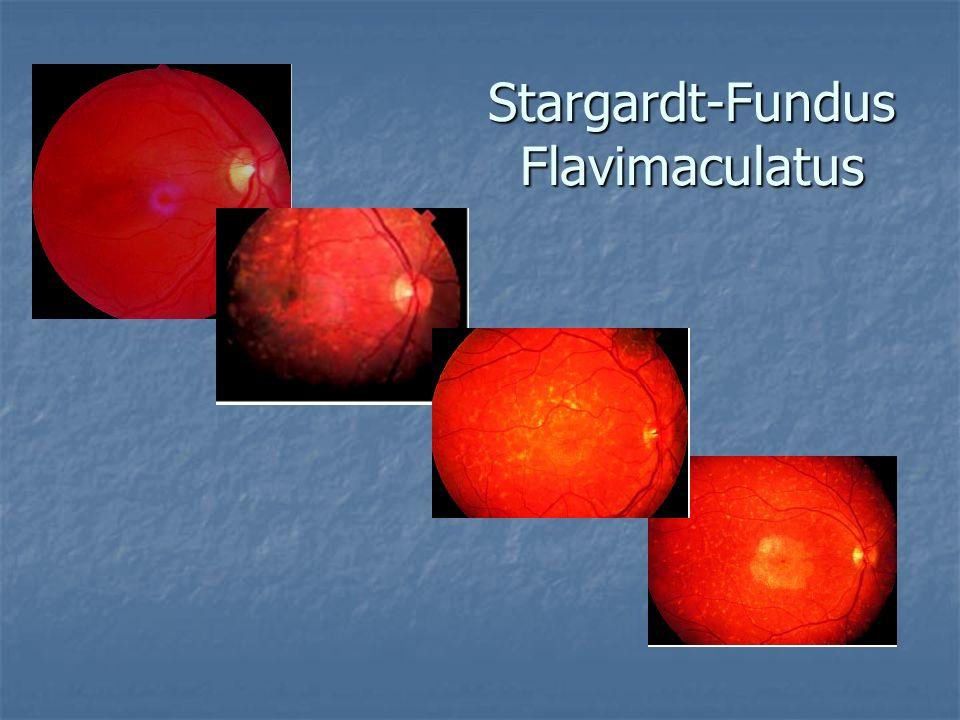 Stargardt-Fundus Flavimaculatus