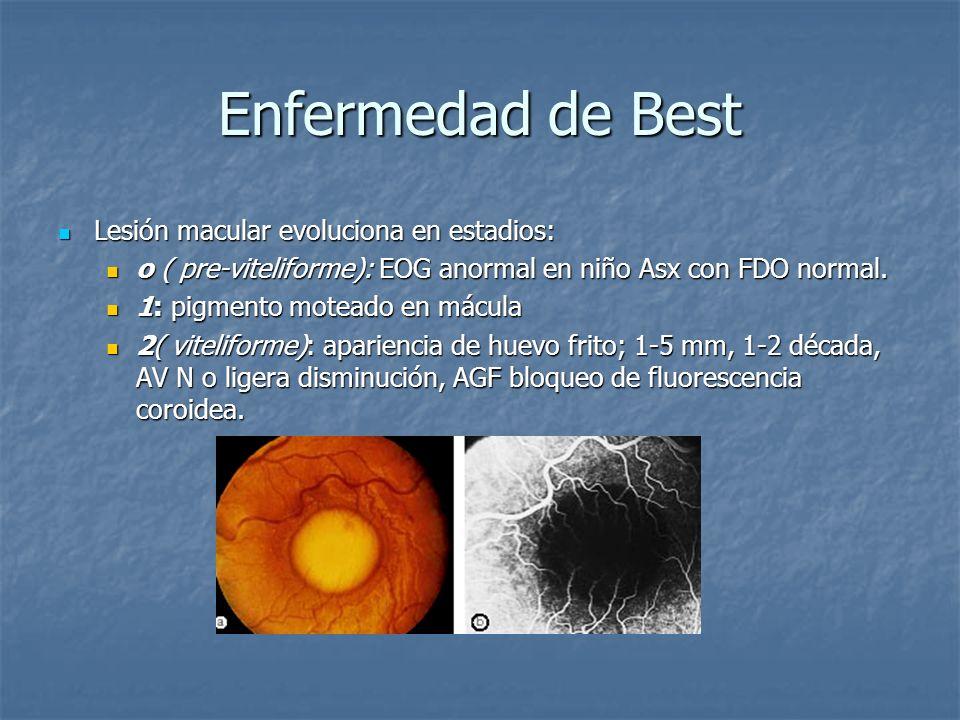 Enfermedad de Best Lesión macular evoluciona en estadios: Lesión macular evoluciona en estadios: o ( pre-viteliforme): EOG anormal en niño Asx con FDO