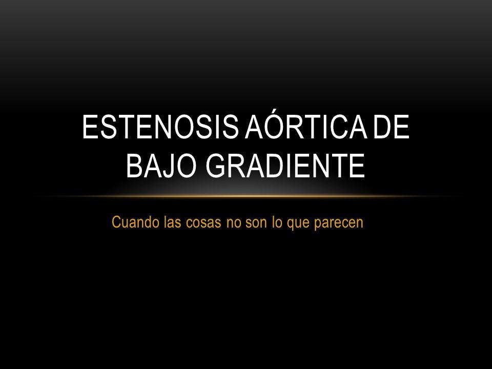 ESTENOSIS AÓRTICA SEVERA Etiología: 50% bicúspide (80% tipo 1, fusión velo coronariano izdo+dcho en anterior grande).