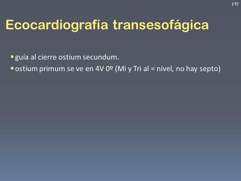 Ecocardiografía transesofágica ETE guía al cierre ostium secundum. ostium primum se ve en 4V 0º (Mi y Tri al = nivel, no hay septo)
