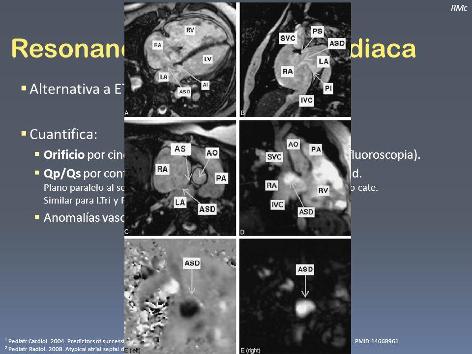 Resonancia magnética cardiaca RMc Alternativa a ETE 1 e incluso cateterismo 2. Cuantifica: Orificio por cine SSFP (comparable con ETE 5500 y globo-flu
