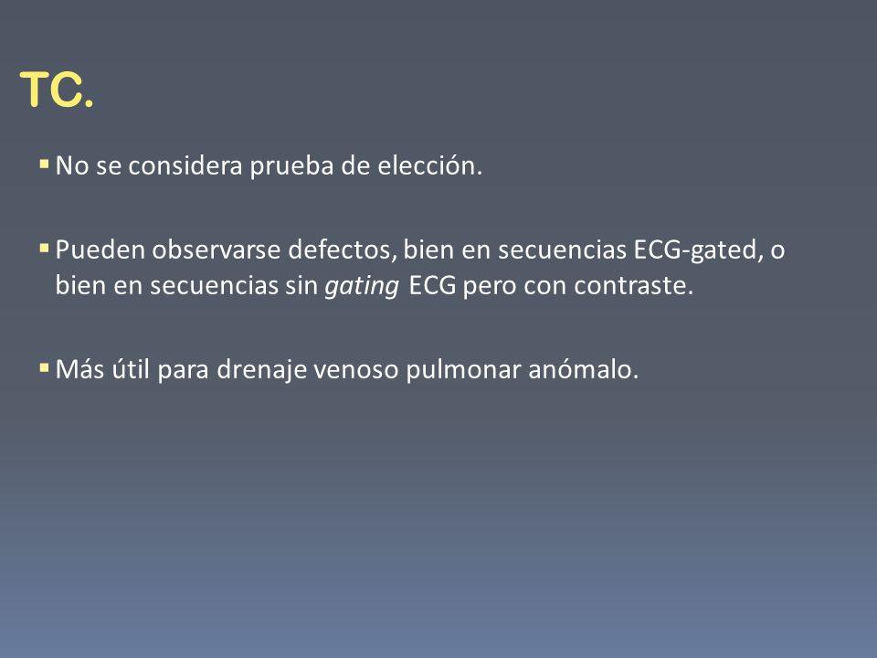 TC. No se considera prueba de elección. Pueden observarse defectos, bien en secuencias ECG-gated, o bien en secuencias sin gating ECG pero con contras
