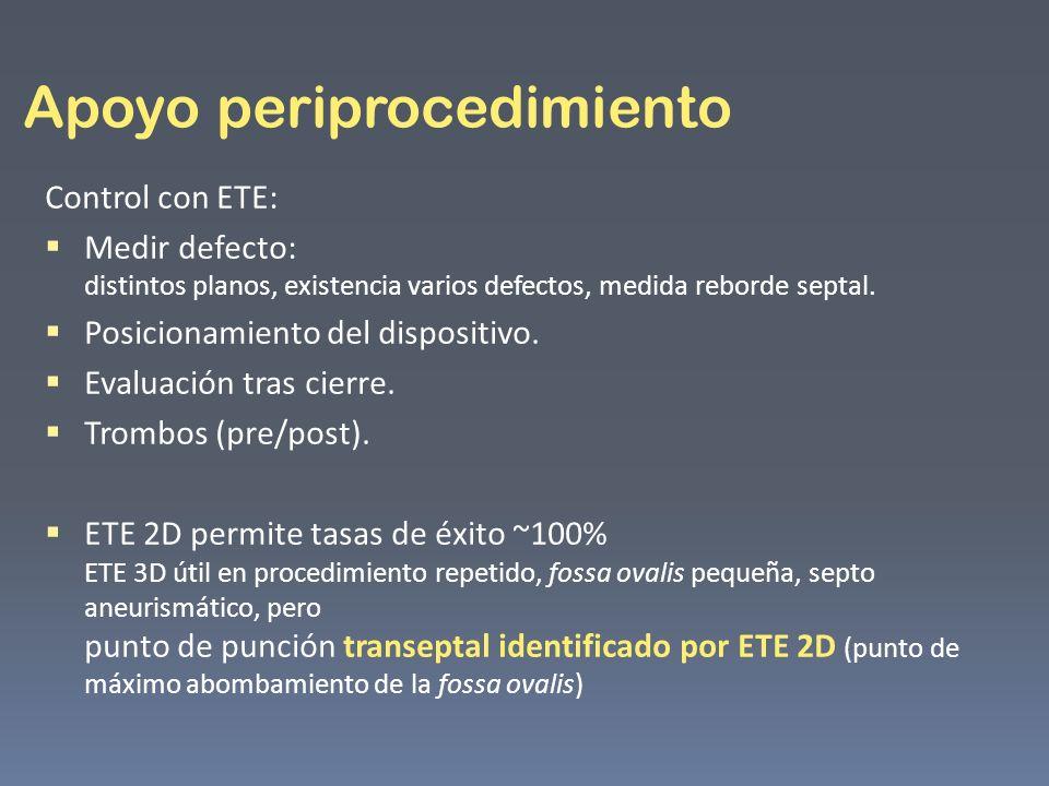 Apoyo periprocedimiento Control con ETE: Medir defecto: distintos planos, existencia varios defectos, medida reborde septal. Posicionamiento del dispo