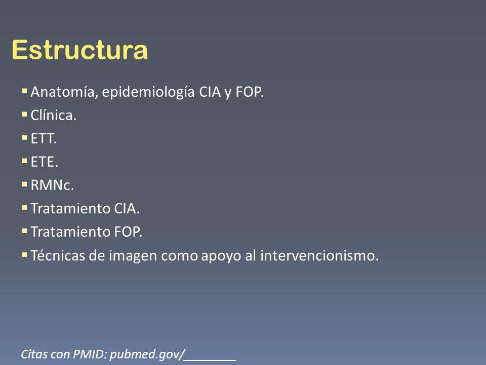 Anatomía y epidemiología.Defectos del septo auricular: cardiopatía congénita más común.